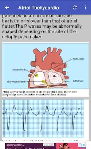 Clinical ECG Guide. 1